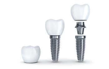 eugene dental implants