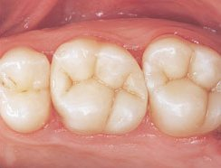 Eugene Holistic Dentist