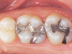 Holistic Dentist Eugene Oregon