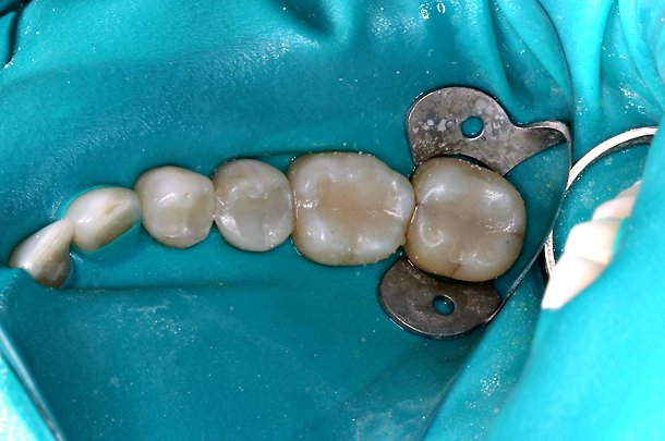 mercury fillings removal