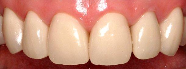 eugene oregon dental repair