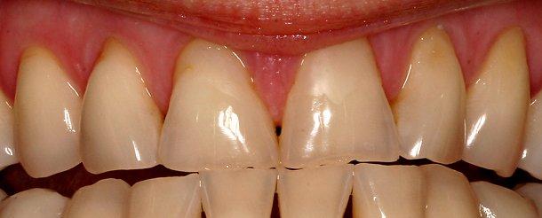 porcelain teeth repair