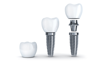 eugene dental implants