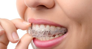 invisalign braces in eugene oregon
